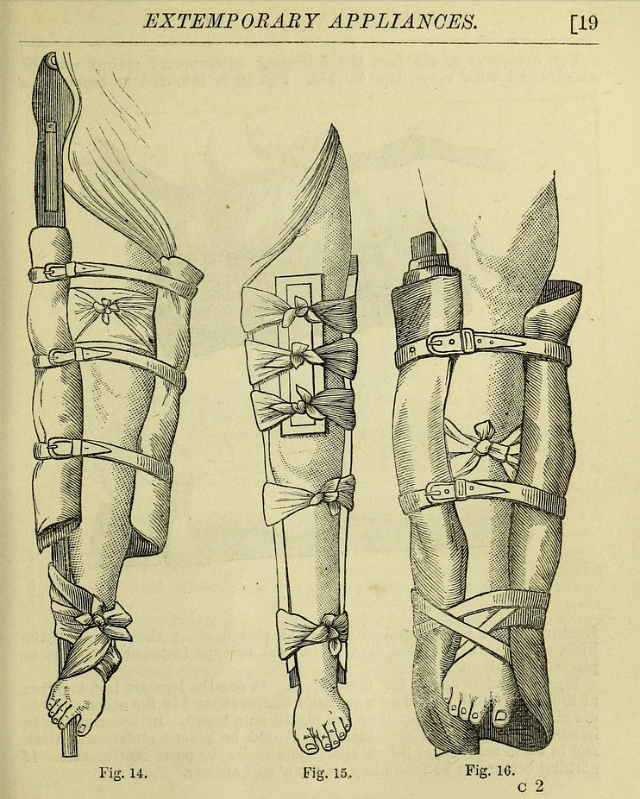 "Illustration from ""The surgeon"